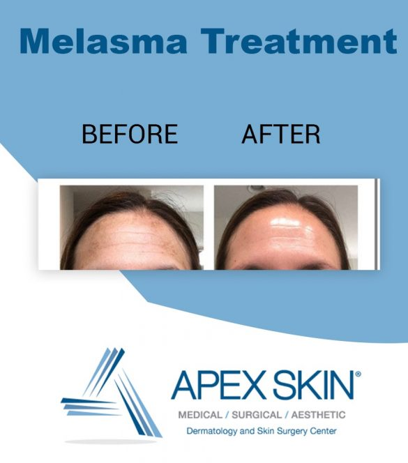 Before and after melasma treatement