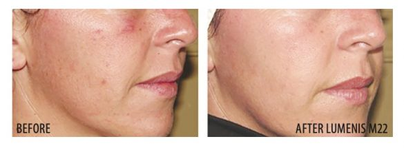 Before and After Lumenis M22 Laser
